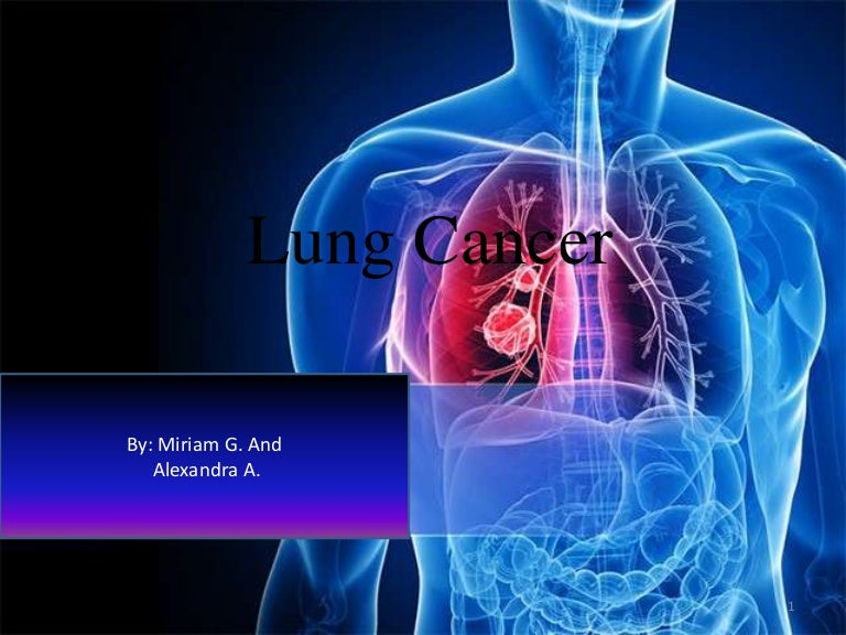Lungcancer 131030162254 phpapp01 thumbnail 4gcb1383150221 toneelgroepblik Image collections