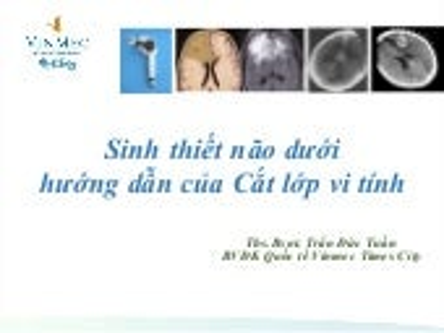 Kỹ thuật sinh thiết não Freehand dưới HD CLVT