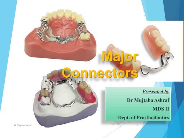 Major connector In prosthodontics