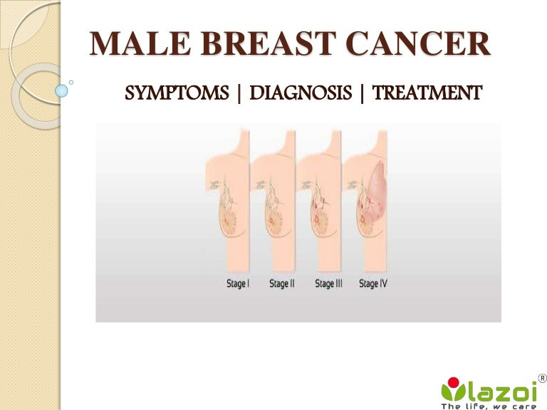 Male Breast Cancer Symptoms Diagnosis And Treatment