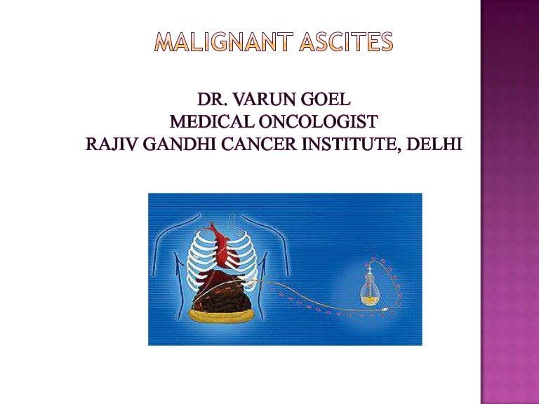 Malignant Ascites Dr Varun