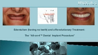 "Edentulism & Revolutionary Treatment :- The ""All-on-4"" Dental Implant Procedure"