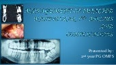 Management of impacted3rd molar