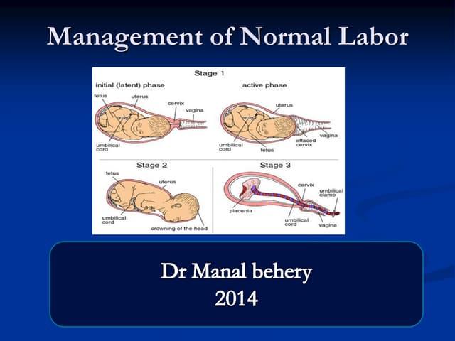 Managment of labor for undergraduate
