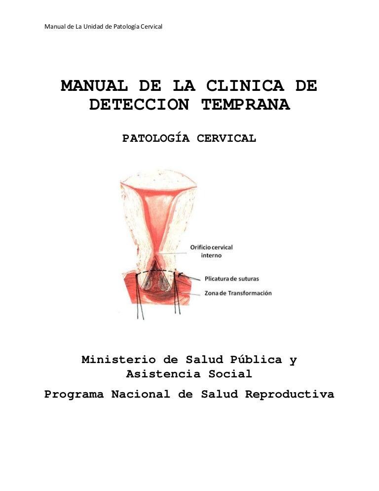cervicitis cronica leve con metaplasia escamosa madura