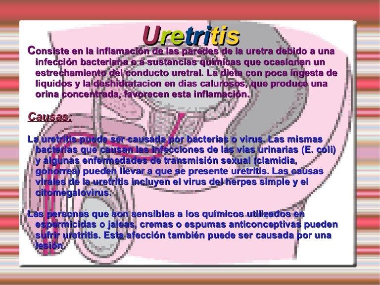 uretritis por herpex simple