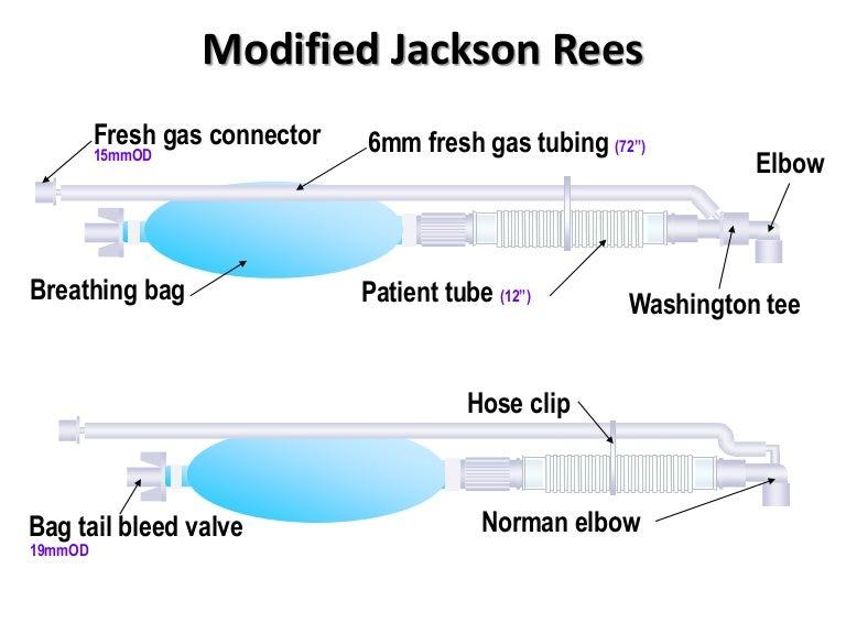 Circuito Jackson Rees : Alat kesehatan jackson rees