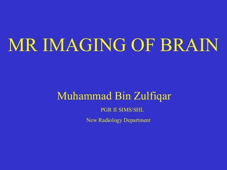 Mri Brain Anatomy Dr Muhammad Bin Zulfiqar