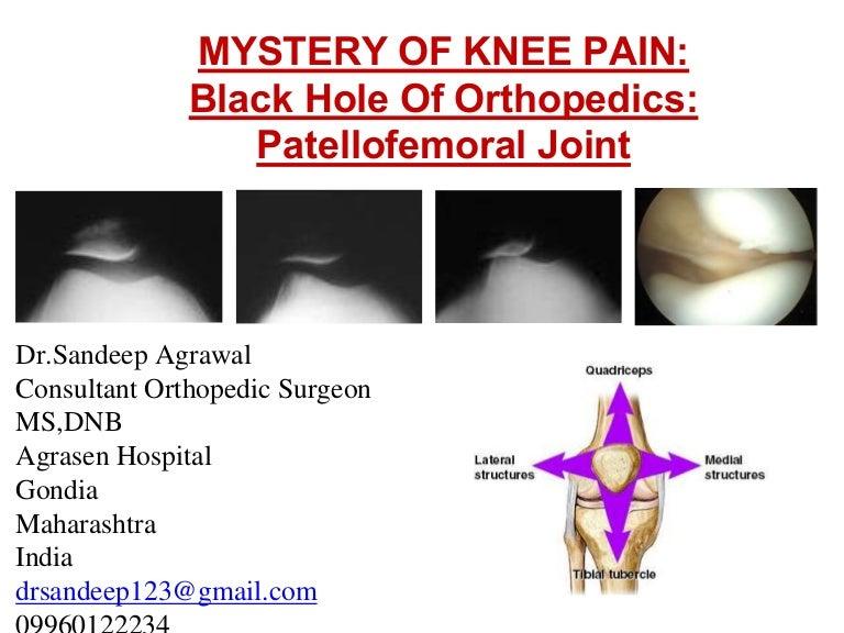 Mystery of Knee pain Black Hole of Orthopedics