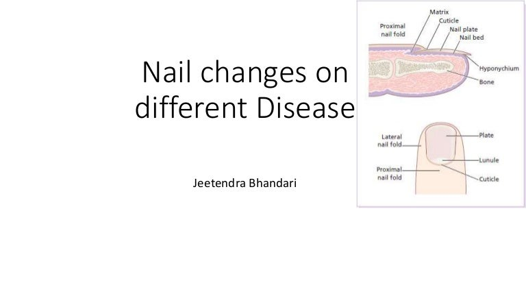 Nail changes on different dermatologic disease