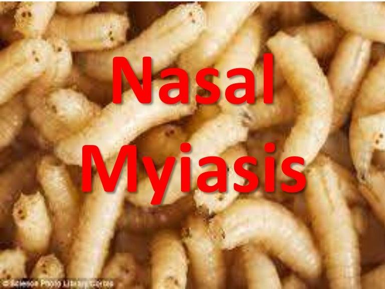 miasis nasal
