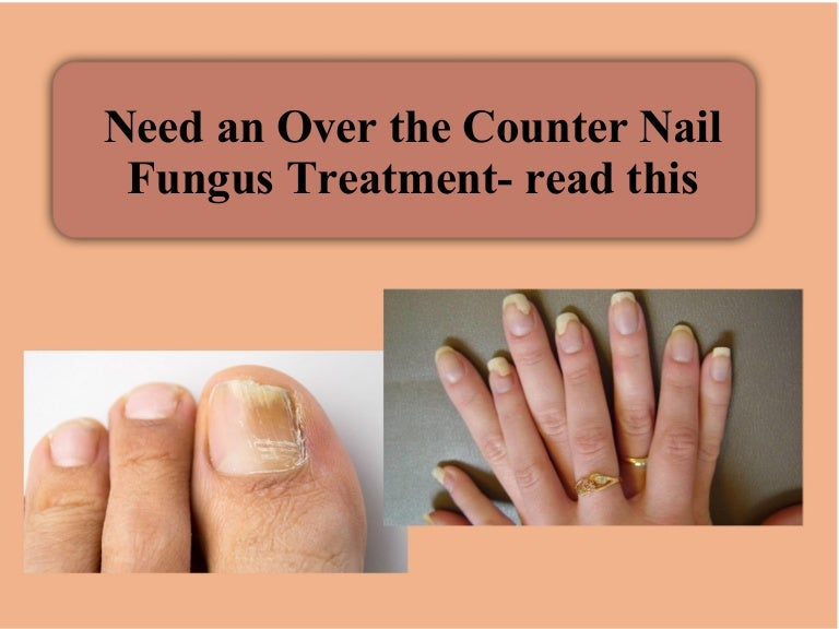 Need an over the counter nail fungus treatment- read this