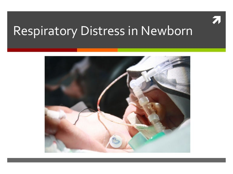 Respiratory distress syndrome by: nicole stevens. Ppt download.