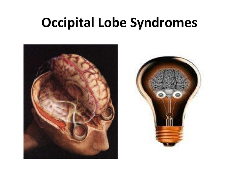 Image result for occipital lobes and simultagnosia