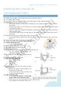 Odontogenic Disease of Maxillary Sinus (Study Notes: Oral & Maxillofacial Surgery)