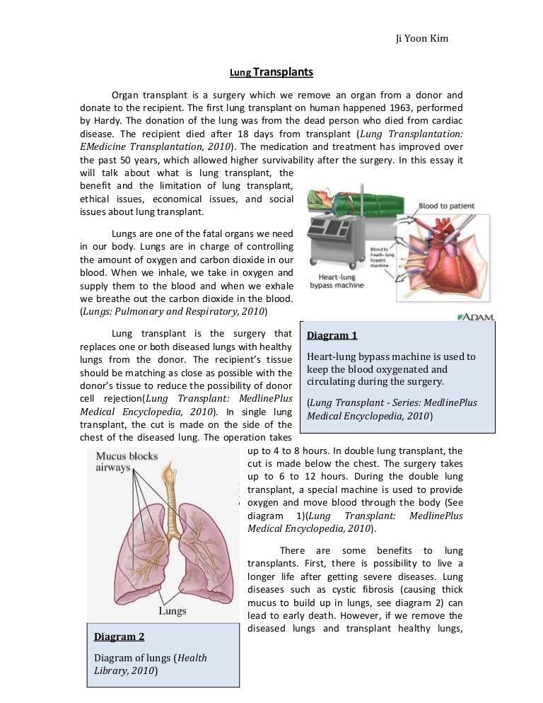 Organ donation thesis statement essays