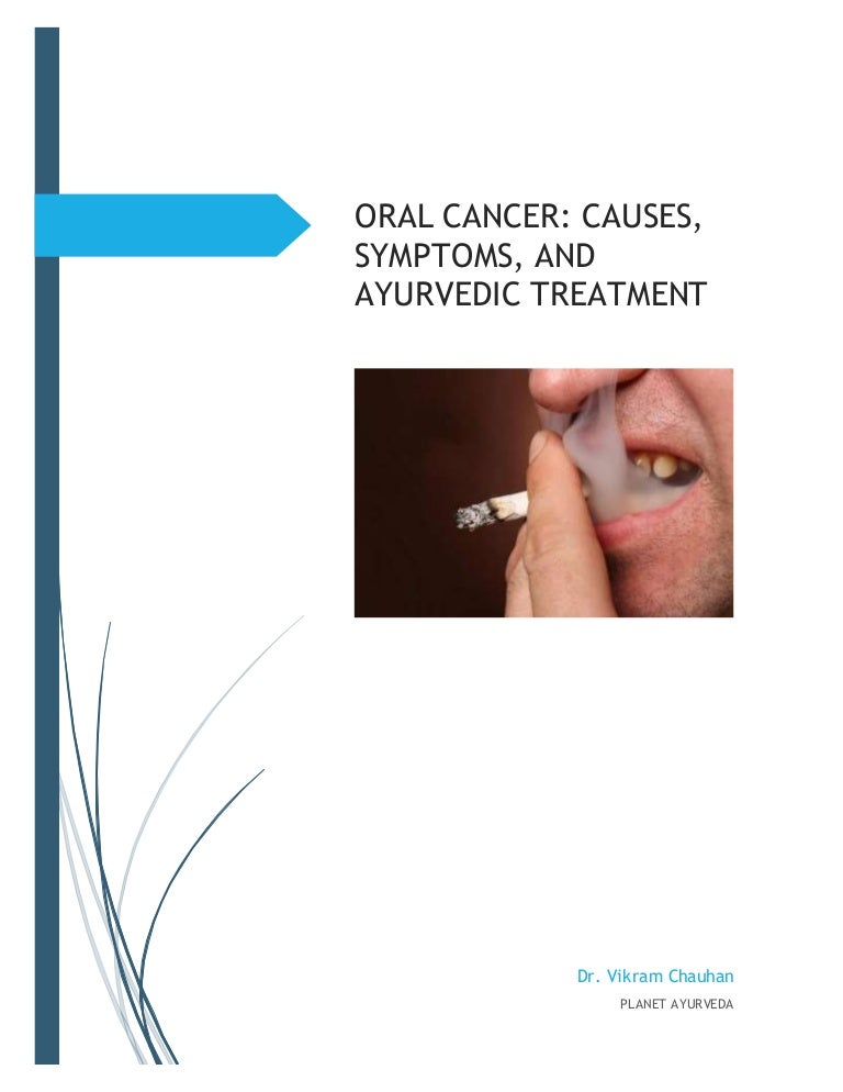 Oral cancer: Causes, Symptoms, And Ayurvedic Treatment
