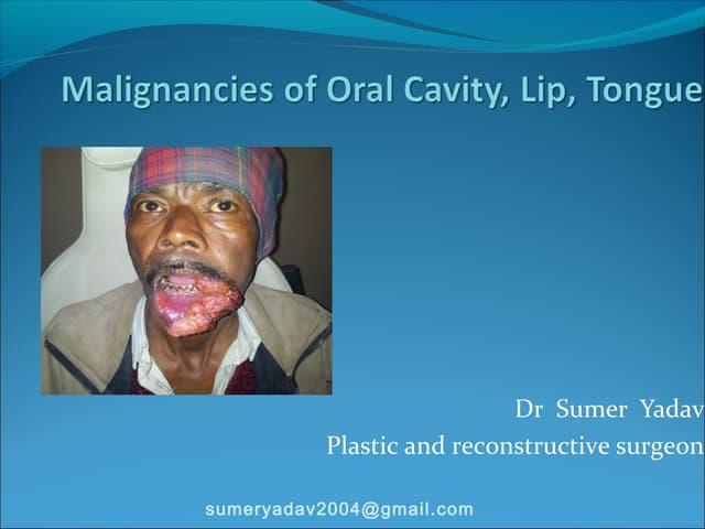 Malignancies of Oral Cavity, Lip, Tongue
