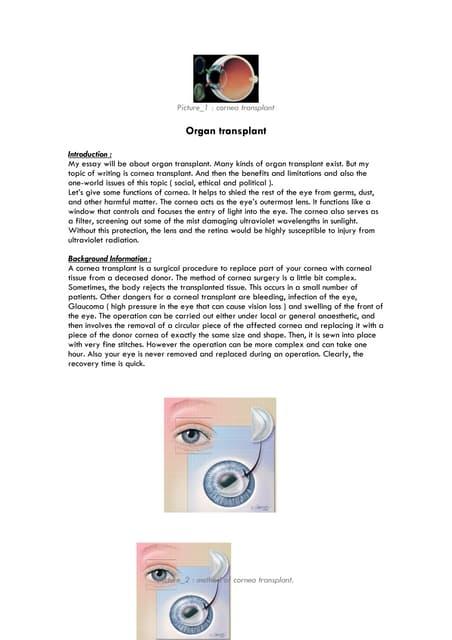 Organ donation essays