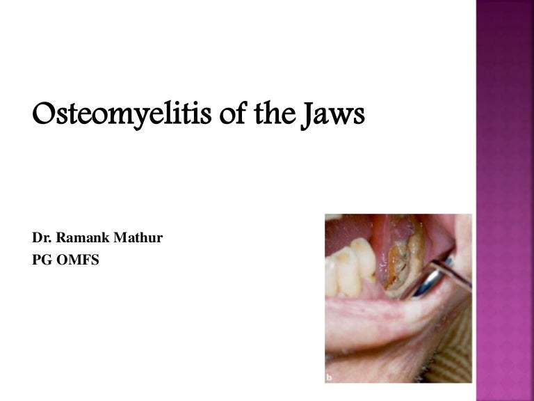 Osteomyelitis of jaws Chronic Osteomyelitis Jaw