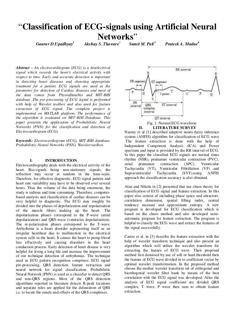 Classification of ecg signal using artificial neural network