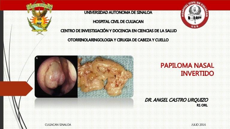 que es papiloma nasal sinonasal inverted papilloma histology