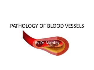 Pathology of blood vessels
