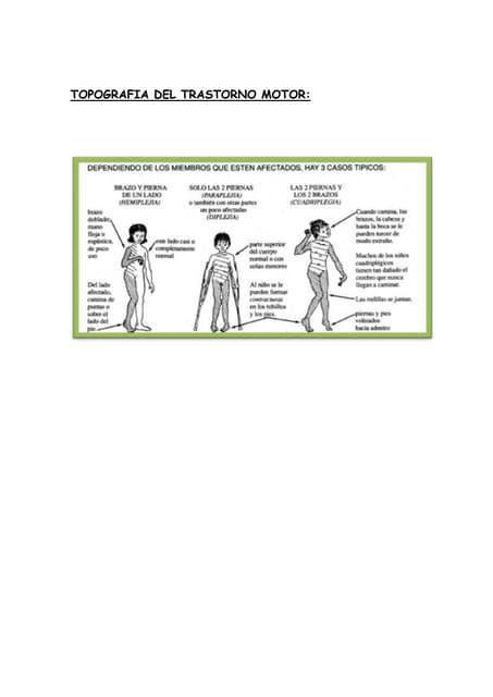 Clasificacion de Paralisis Cerebral