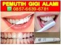 Hub 0857 6639 6781 Wa Pemutih Gigi Alami Pemutih Gigi Di Apotik