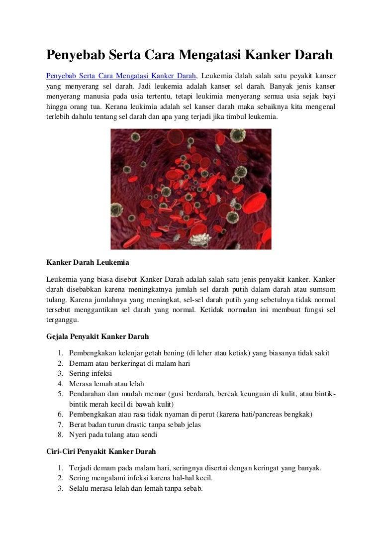 Penyebab serta cara mengobati kanker darah