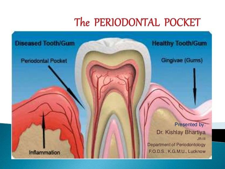 Periodontal-flap-surgery.