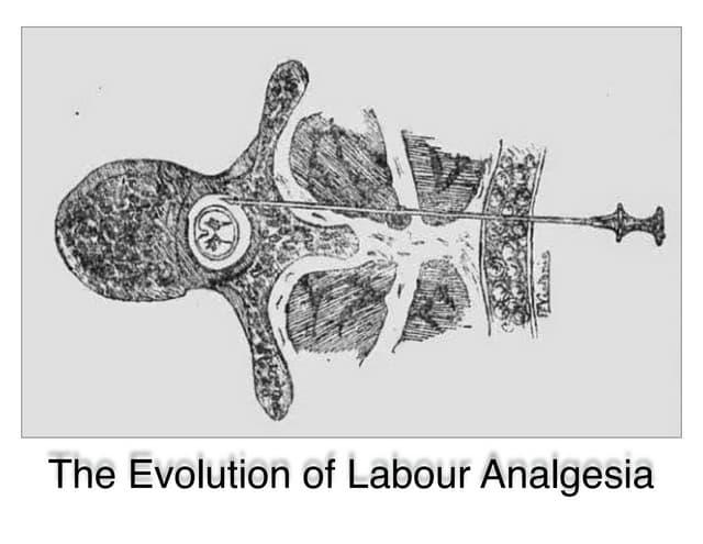 PIEB Labour Analgesia