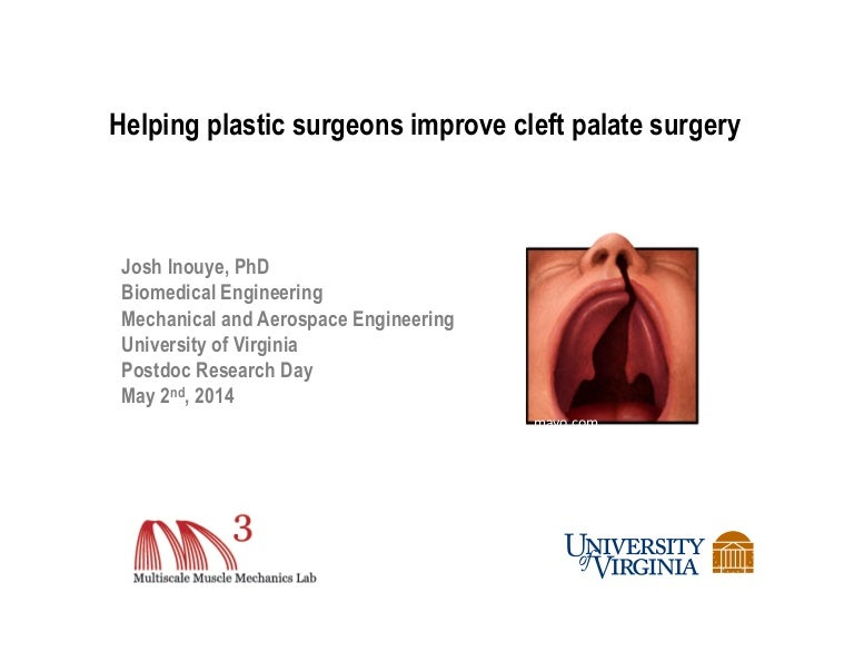 Helping plastic surgeons improve cleft palate surgery