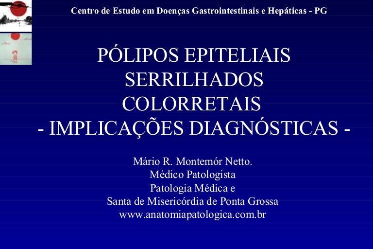 polipo hiperplasico de tipo microvesicular de colon sigmoide
