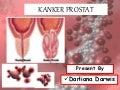 Ppt kanker prostat