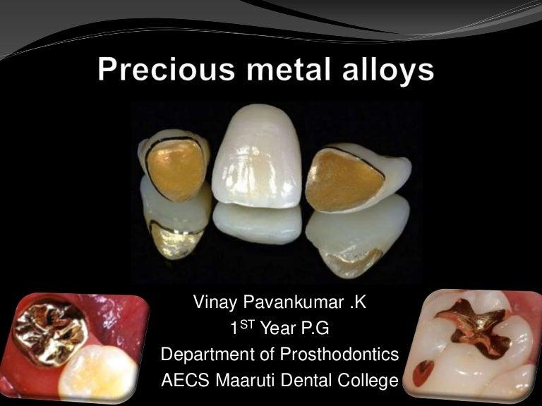 taniej niskie ceny zasznurować Precious metal alloys in dentistry
