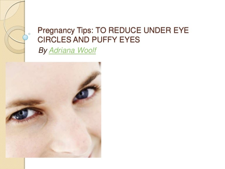 Pregnancy Tips: TO REDUCE UNDER EYE CIRCLES AND PUFFY EYES