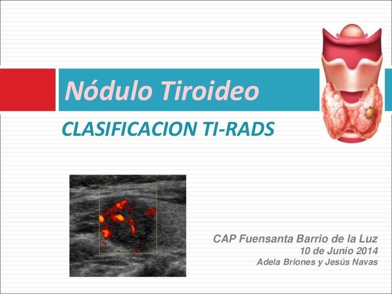 nodulo mixto con vascularizacion periferica