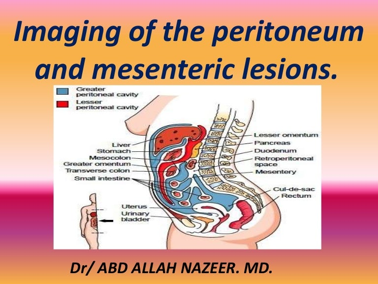 Presentation1 Pptx Imaging Of The Peritoneum And Mesentry