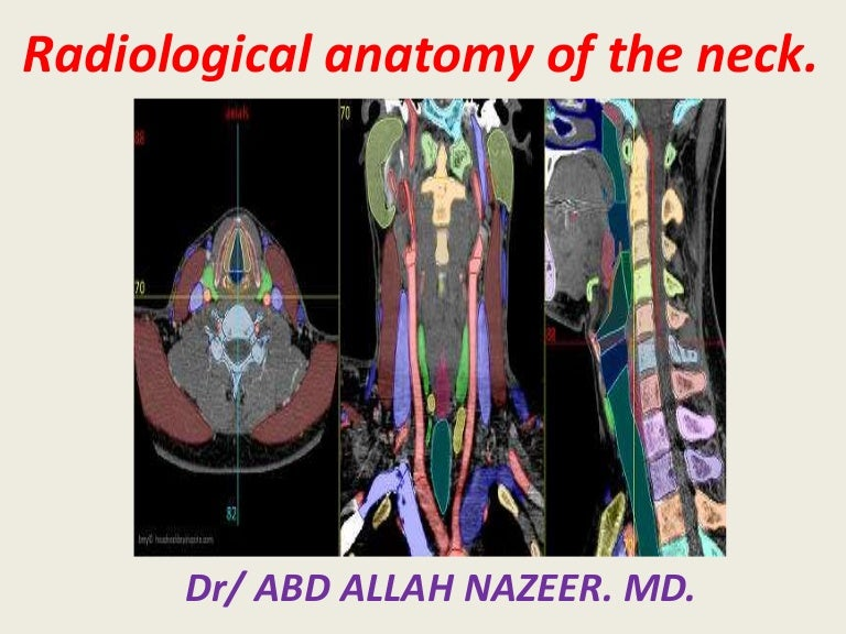 Presentation1pptx Radiological Anatomy Of The Neck