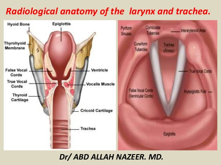 Presentation1pptx Radiological Anatomy Of The Larynx And Trachea