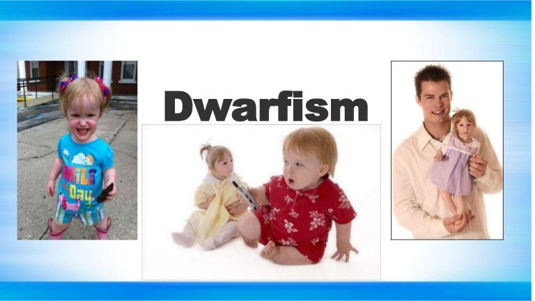 datatable dwarfism treatment - 768×432