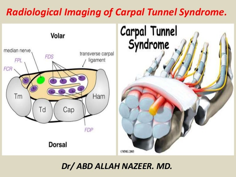Presentation1 Radiological Imaging Of Carpal Tunnel Syndrome
