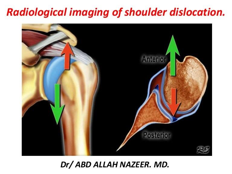 Presentation1, radiological imaging of shoulder dislocation.