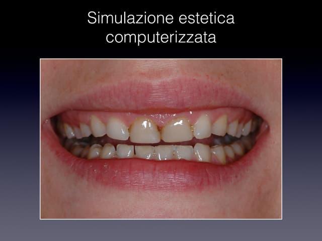 vip más agenesia dental