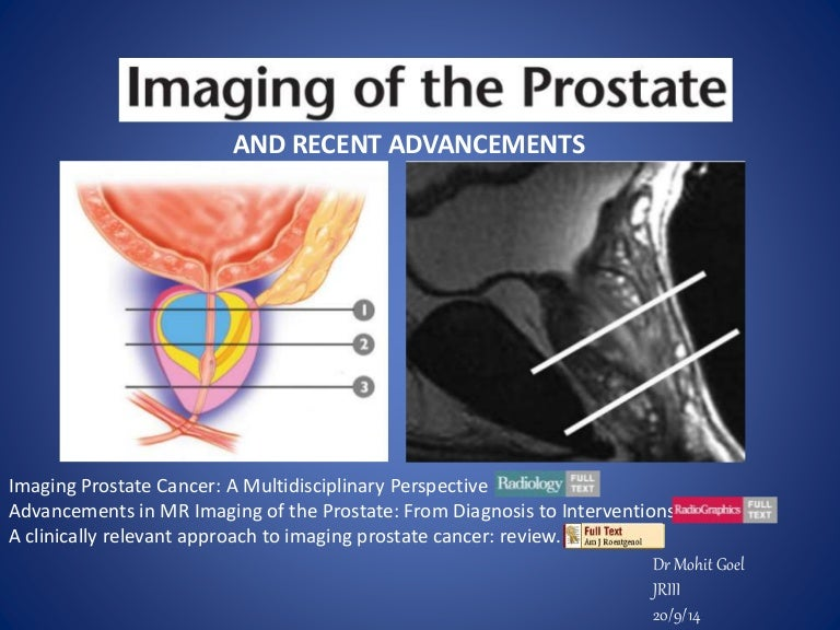 prostate transition zone cancer