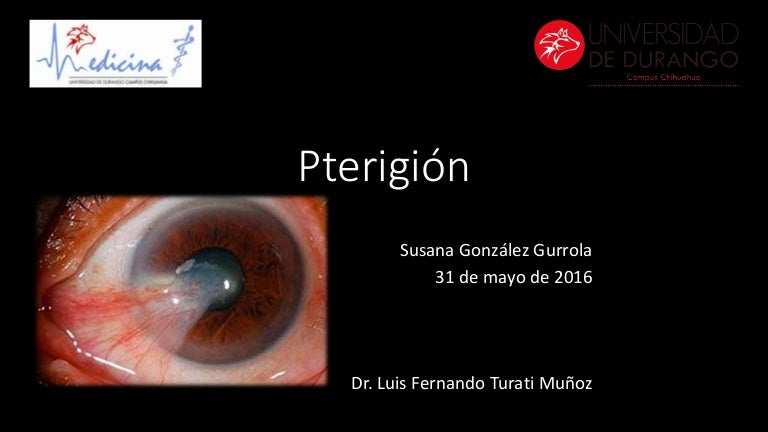 pterigion y ojo seco