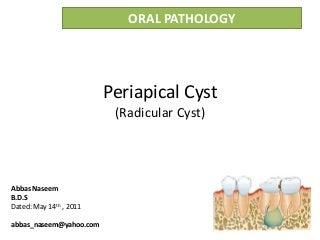 Radicular cyst or Periapical cyst