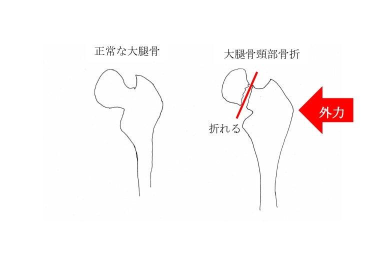 大腿 骨 頸 部 骨折