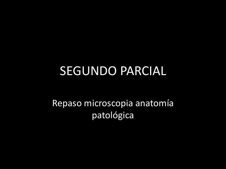 hiperplasia adeno leiomiomatosa de la próstata